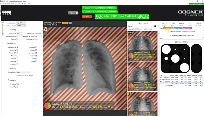 cat scans of lungs in VisionPro Deep Learning software environment